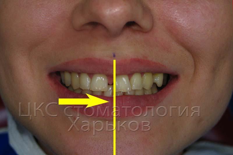 Планирование ортодонтических перемещений