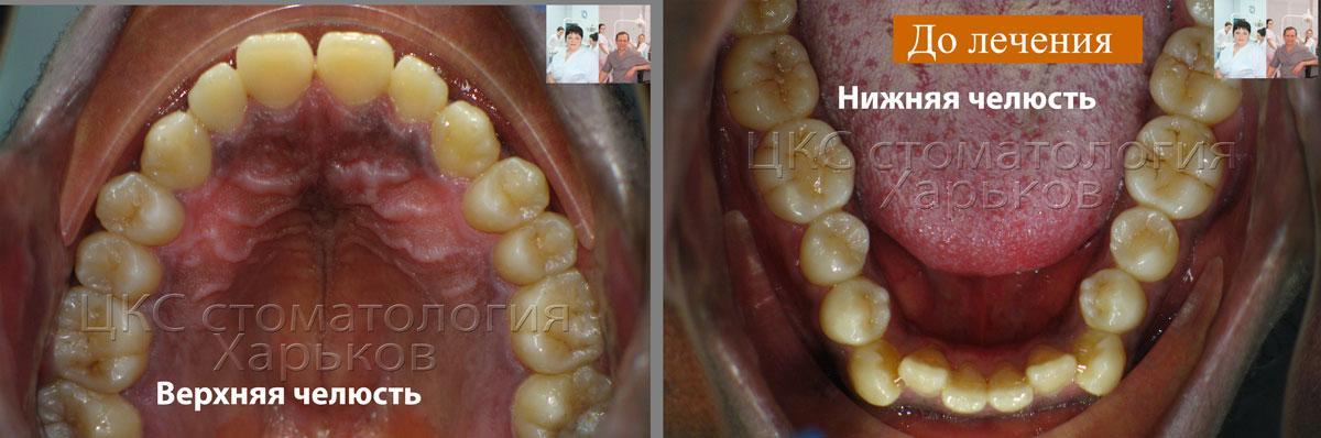 Форма зубных рядов ДО