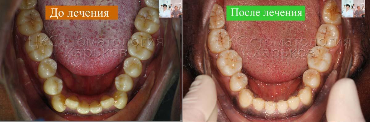 Зубные ряды  ДО и ПОСЛЕ