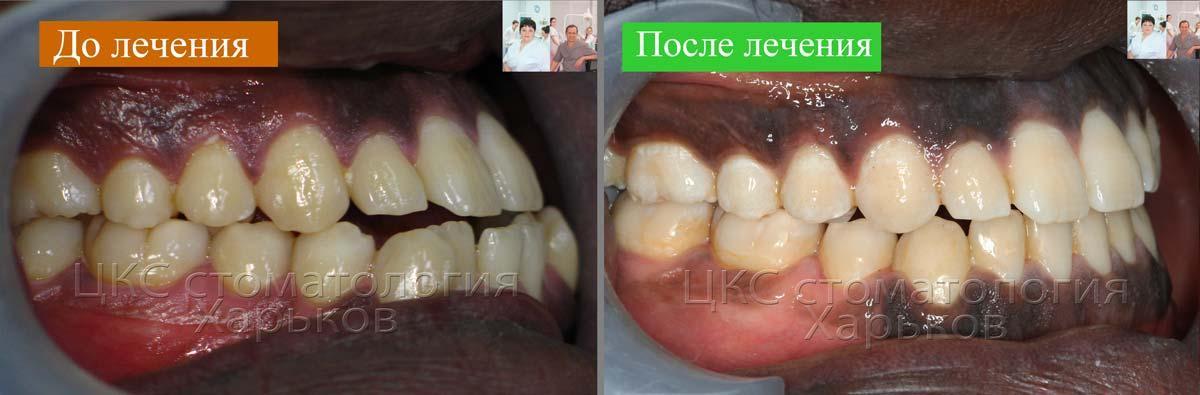 Смыкание зубов ДО и ПОСЛЕ в боковой проекции