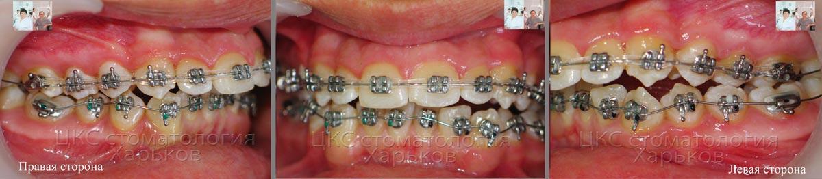 Этап установки системы на нижней челюсти
