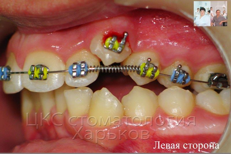 Как дистализировать жевательные зубы