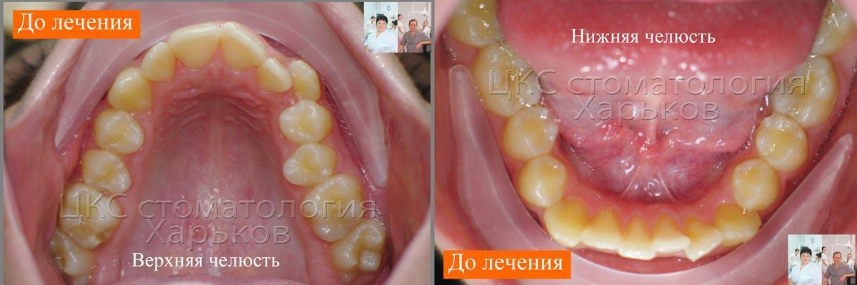 Верхний и нижние зубные ряды ДО