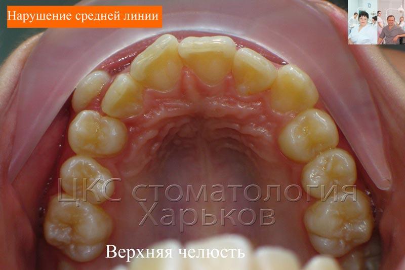 Дефицит места зубного ряда