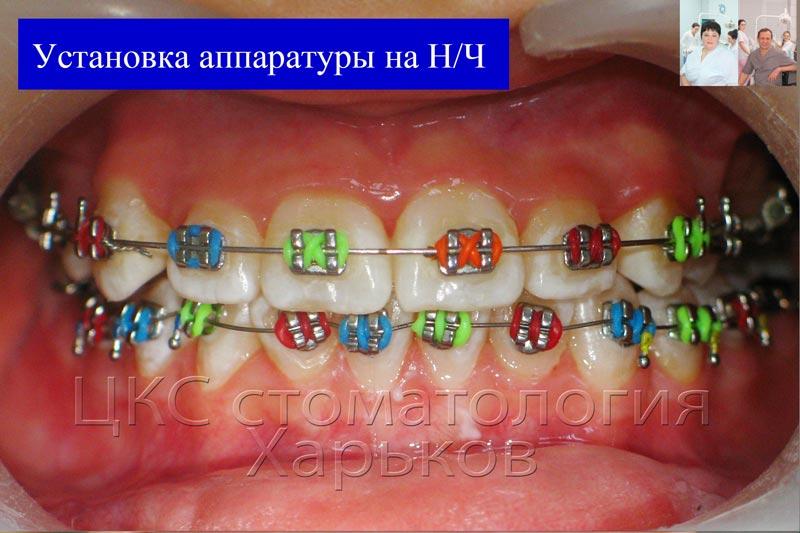Установка ортодонтической аппаратуры на нижнюю челюсть