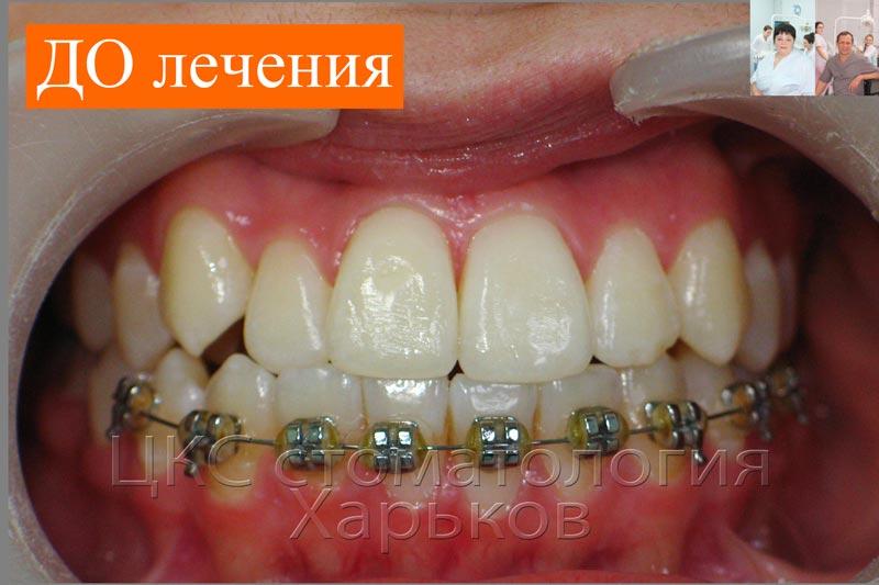 Неудовлетворительное лечение брекетами в Харькове