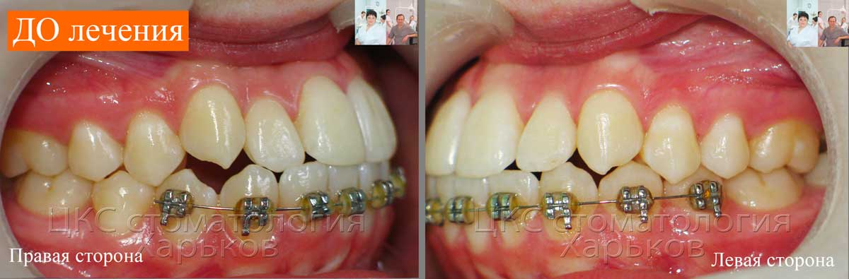 На нижней челюсти сохранены старые ортодонтические замки