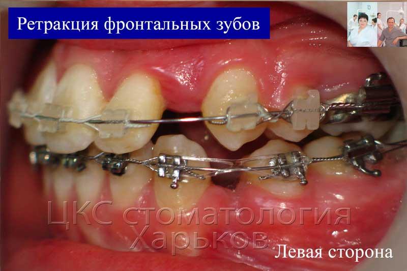 Лечение с удалением зубов стоматологии Харьков