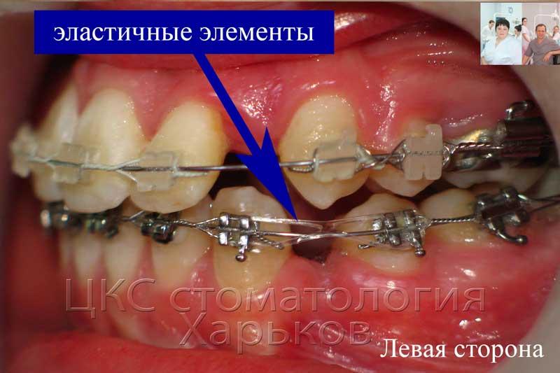 Использование эластофорса для ретракции зубов