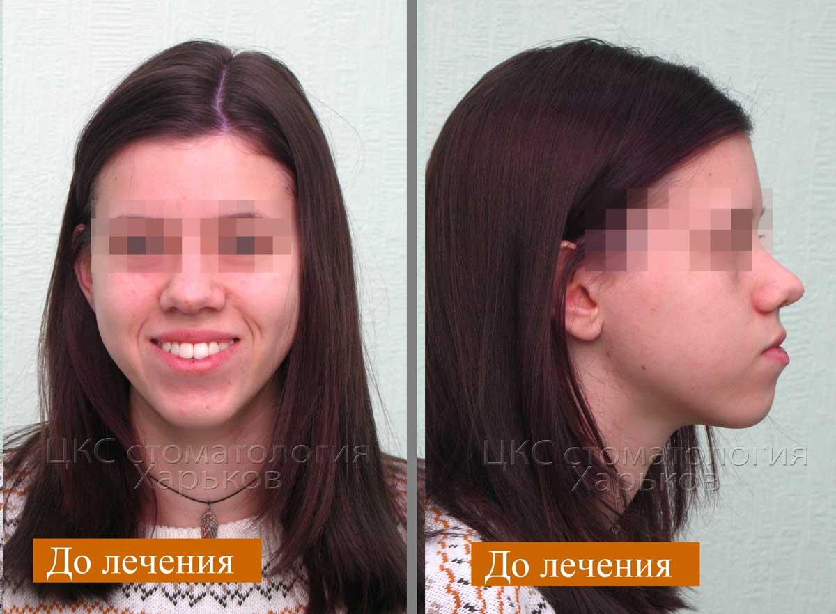 неэстетичный профиль ортодонтия Харьков