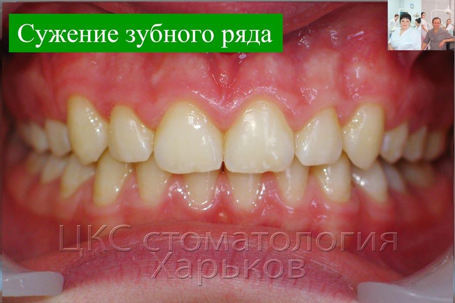 ПОСЛЕ лечения нормализована ширина челюсти
