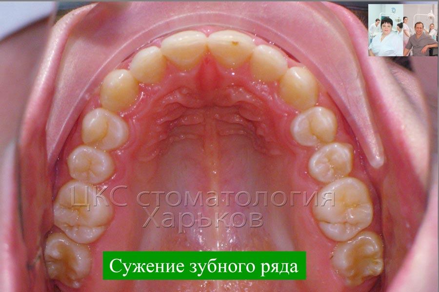 Правильная форма зубного ряда
