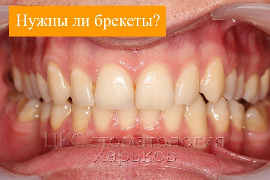 стоматология Харьков ДО лечения