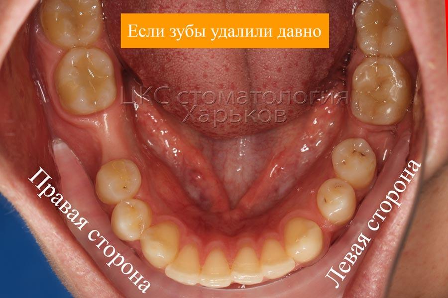 адентия зубов нижней челюсти включенные дефекты