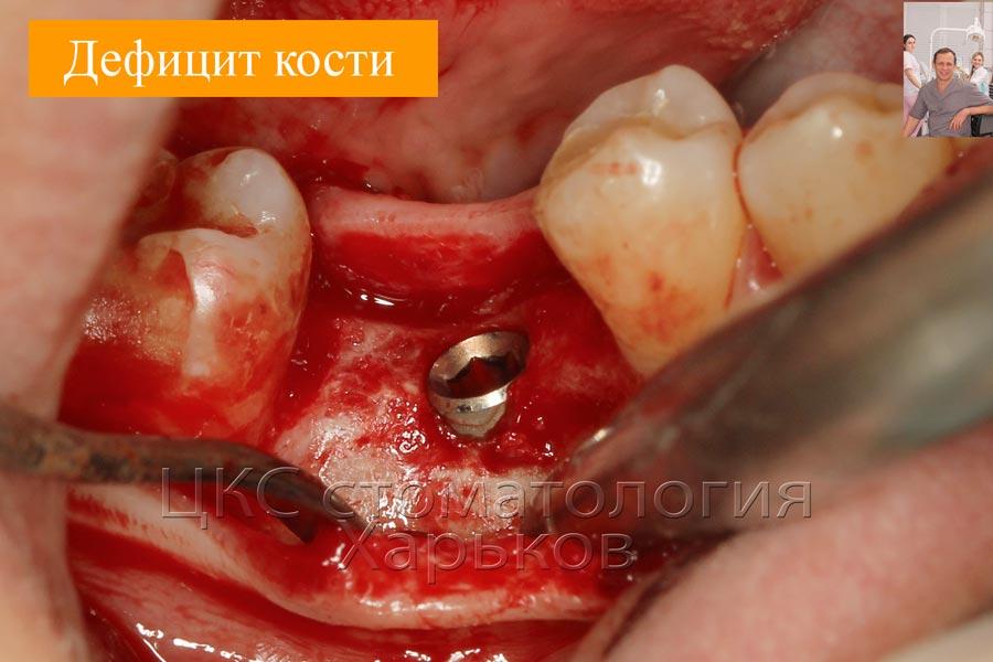 Имплантация в условиях дефицита кости