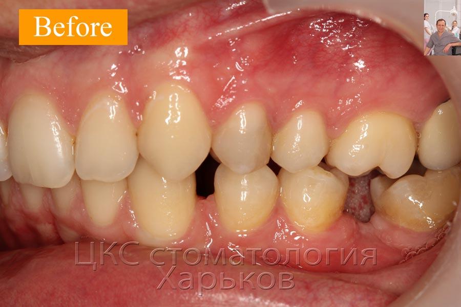 Деформация зубного ряда, длительный период адентии