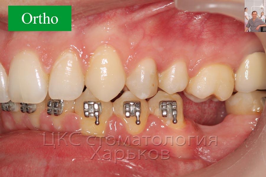 Финал ортодонтического этапа лечения