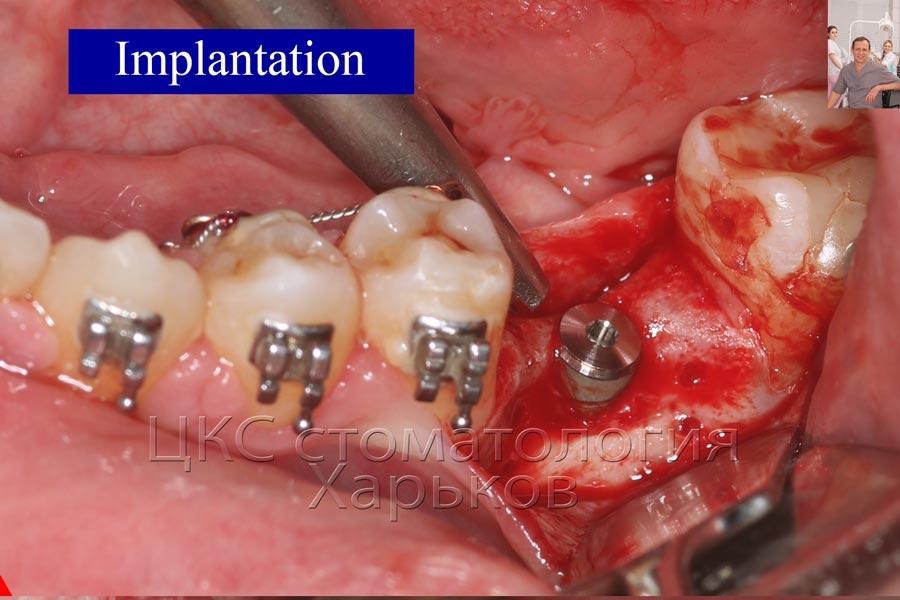 Имплантат установлен, с учетом предстоящей аугментации