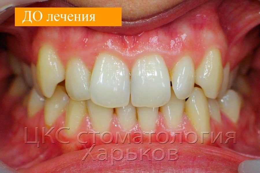 Скученное положение зубов ДО лечения
