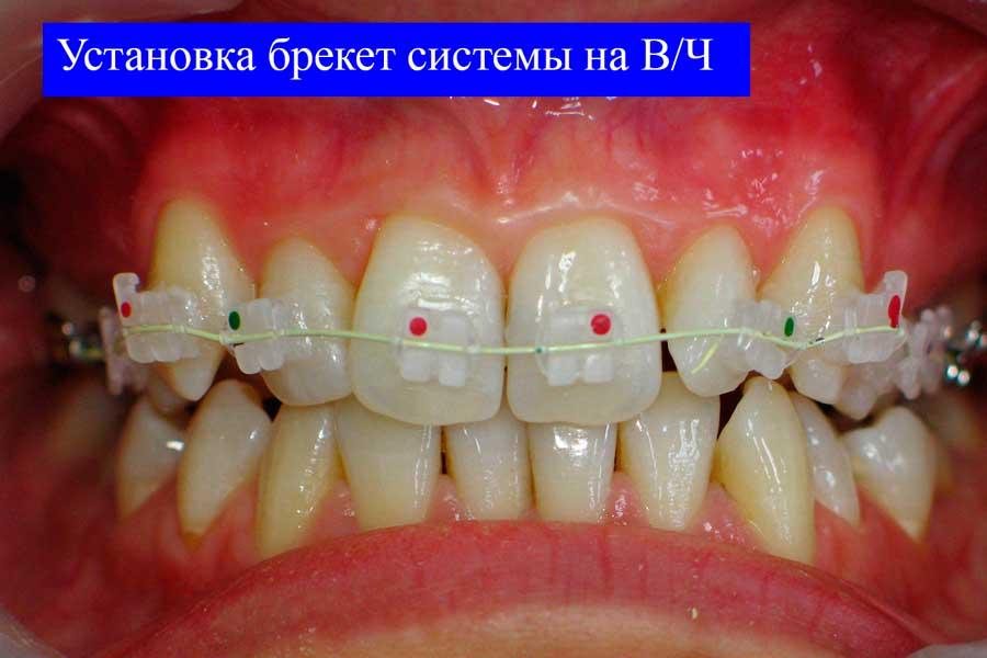 Керамическая брекет система установлена на верхнюю челюсть