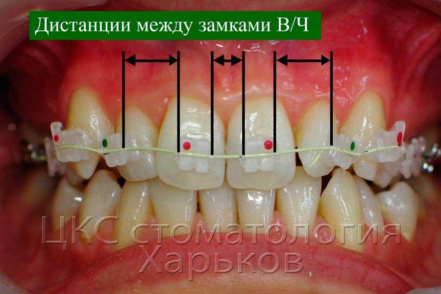 Дистанции пружинящих элементов на верхней челюсти
