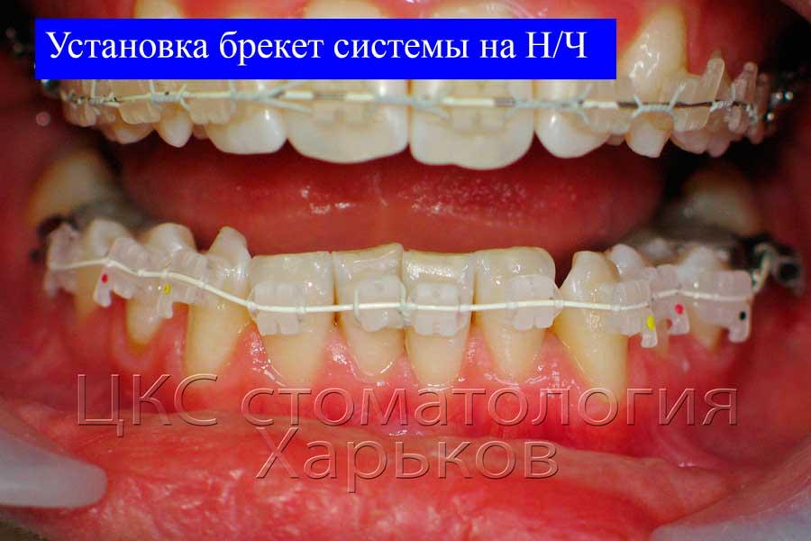 Керамическая брекет система установлена на нижнюю челюсть
