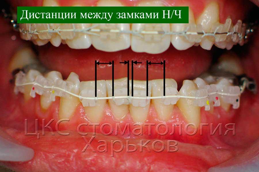 Дистанции пружинящих элементов на нижней челюсти