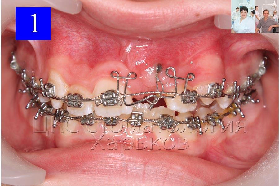 Петлеобразная дуга используется для вытяжения ретинированного зуба