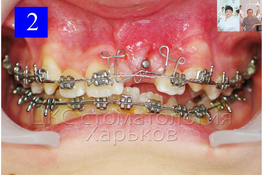 Дуга с петлями позволяет развивать мягкие ортодонтические силы