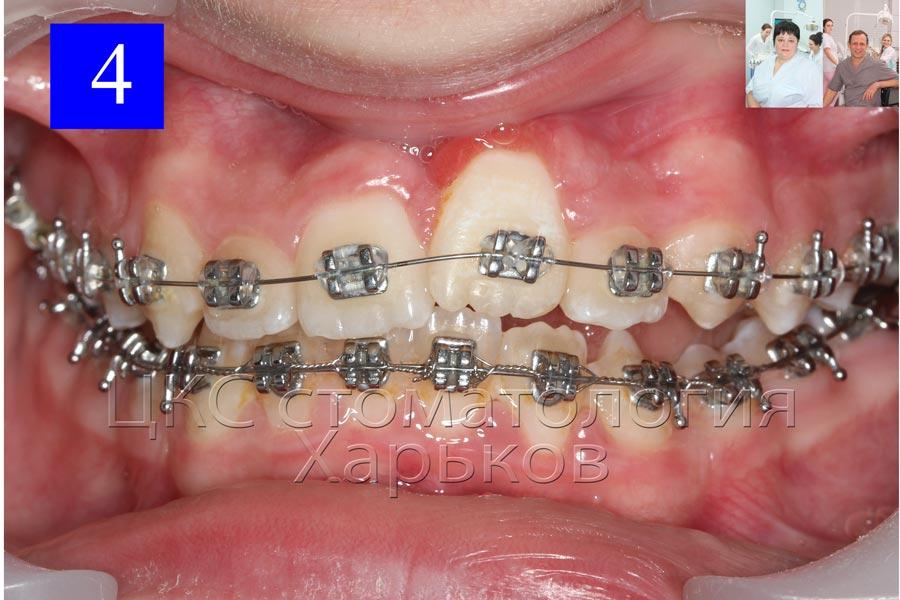 в простых случаях ортодонты выбирают технику прямой дуги