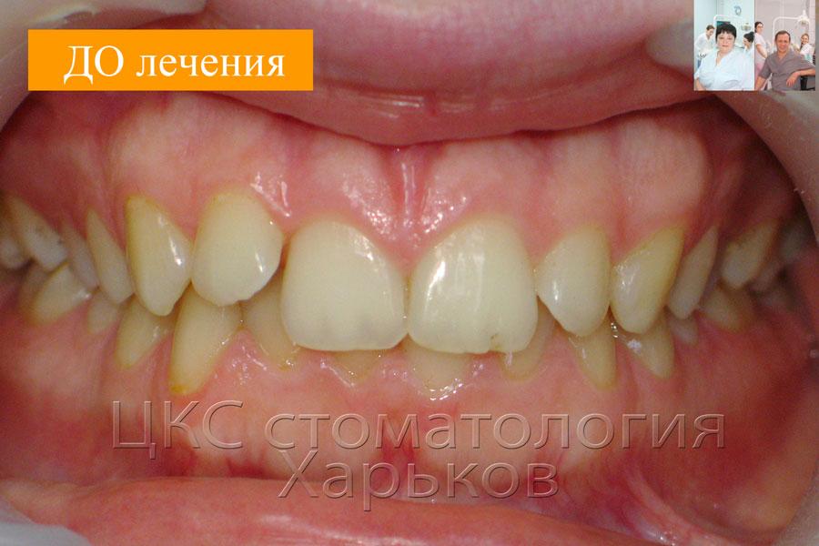 Фото зубов ДО лечения
