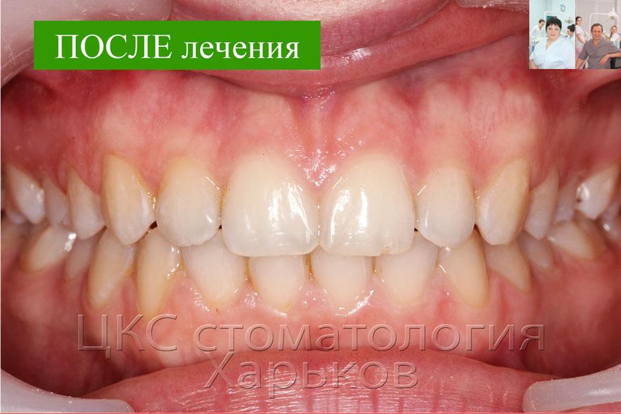 Фото зубов ПОСЛЕ лечения
