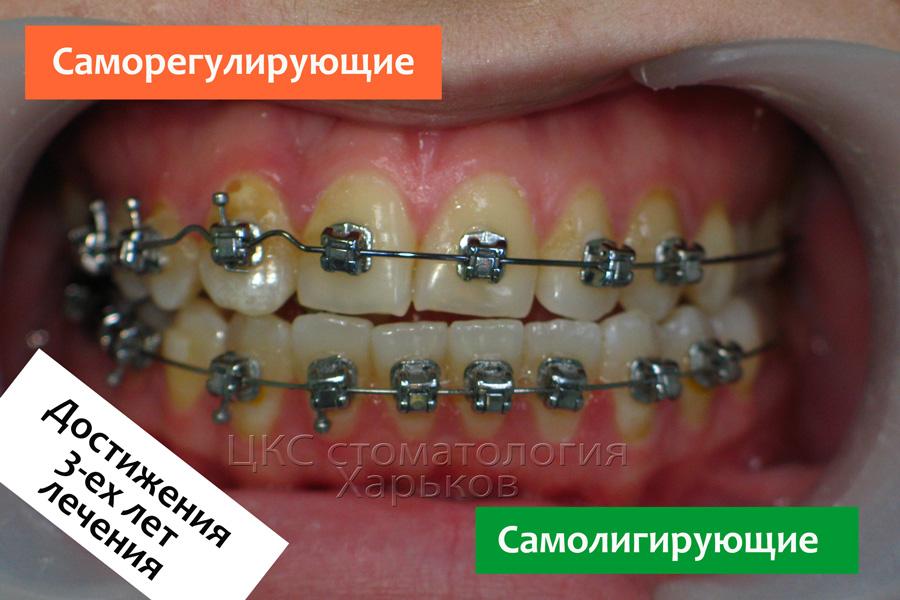 Неровные зубы через три года лечения