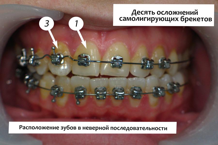 Нарушение порядка расположения зубов