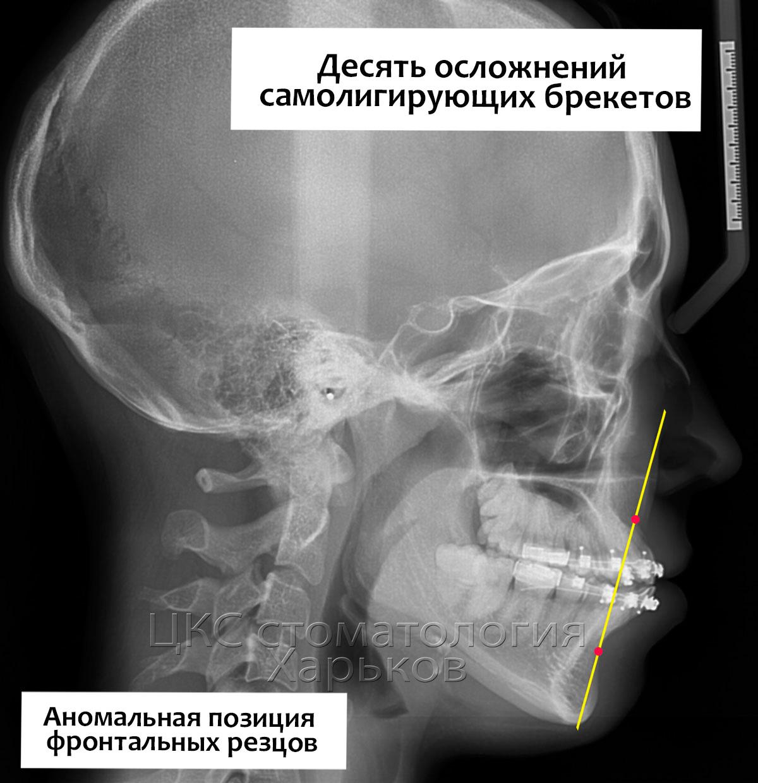 Аномалии строения лицевого скелета