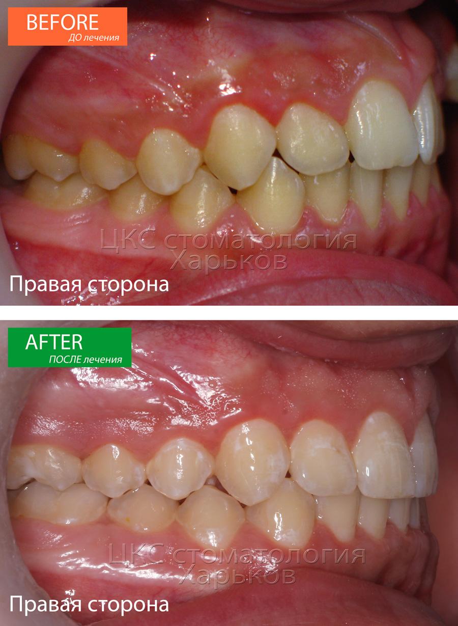 Соотношение зубных рядов ДО и ПОСЛЕ