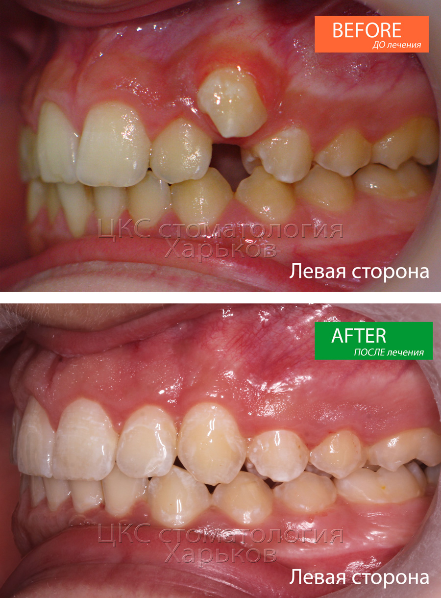 Характер смыкания зубов ДО и ПОСЛЕ