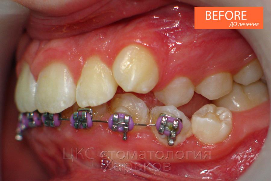 Начинаем все сначала, зубы ДО лечения