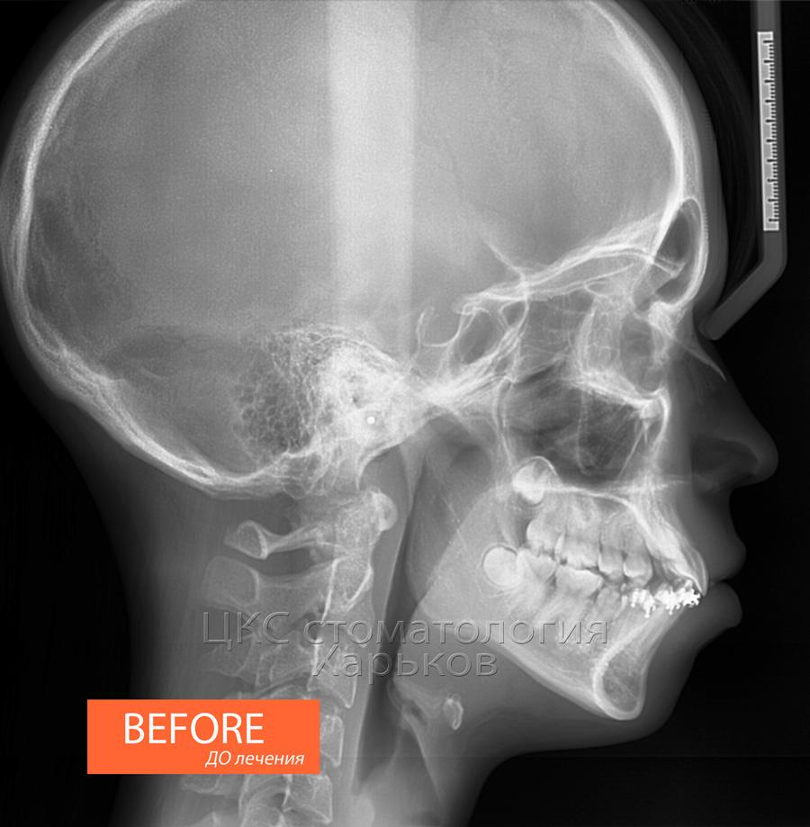 Снимок ТРГ черепа в боковой проекции