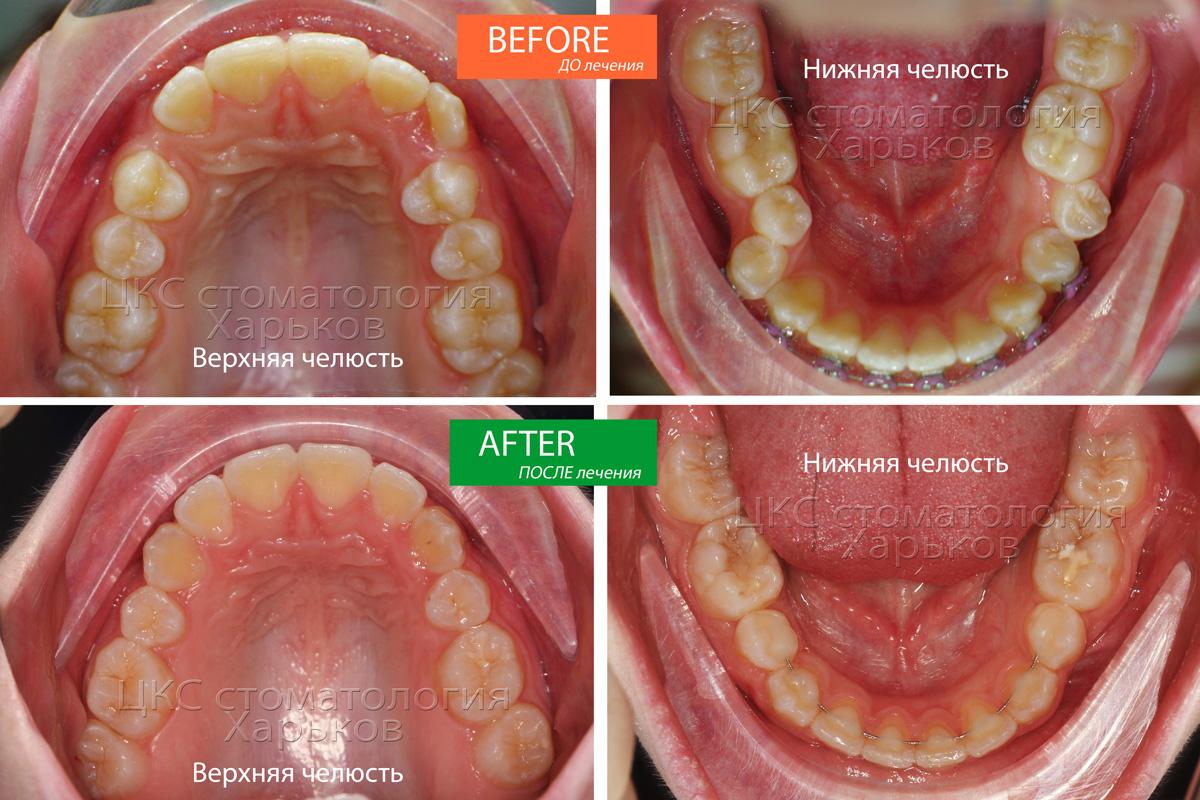 Форма зубных рядов ДО и ПОСЛЕ лечения