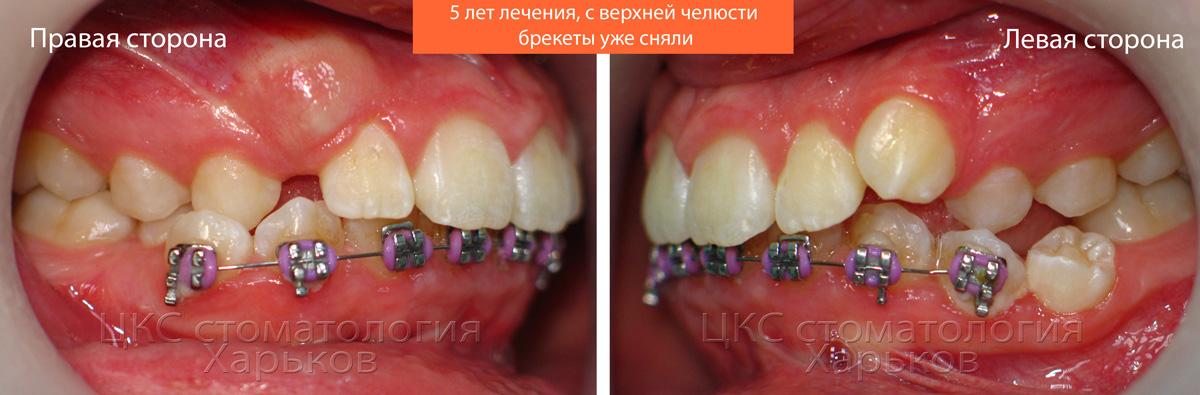 Зубы кривые, похоже, что проводилось лечение
