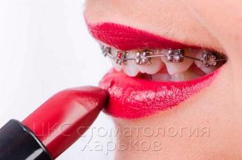 Установить брекеты в стоматологии Харькова
