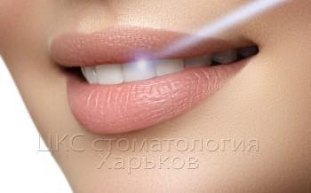 Керамические виниры в стоматологии Харьков