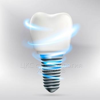 Зубная имплантация в стоматологии Харьков