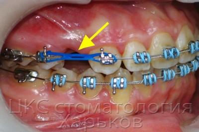Эластофорс (второе название чейны) – ортодонтические непрерывные цепочки
