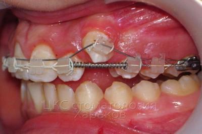 Идеальное ортодонтическое лечение - это брекеты без удаления зубов! Обращайтесь к ортодонтам вовремя!
