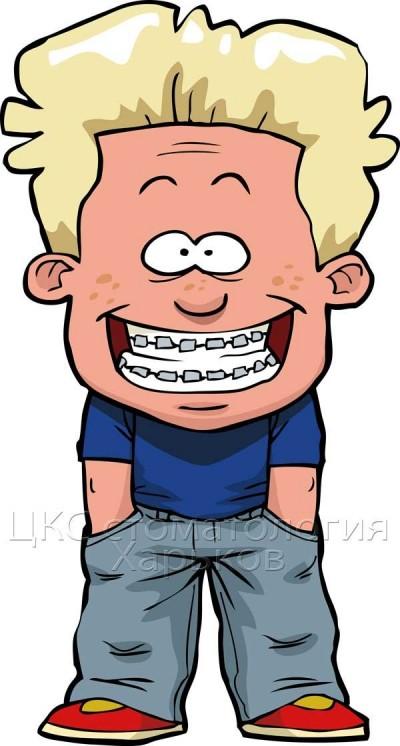 Неровные зубы, нарушение прикуса, лечение брекетами. Удалять или не удалять зубы?