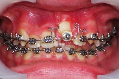 Ретенированный зуб. Ортодонтические проблемы у всех одинаковые, а клинические случаи разные