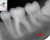 Причиной зубной боли часто является некачественное лечение каналов