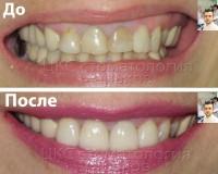 Борьба с окрашенными зубами и некрасивыми пломбами